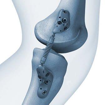Recenzii privind tratamentul reviziilor de osteoartrita in gelatina