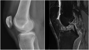 ruptura de ligament incrucisat