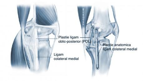 refacerea ligamentului colateral medial al șocului articulațiile rănite din brânza de căsuță