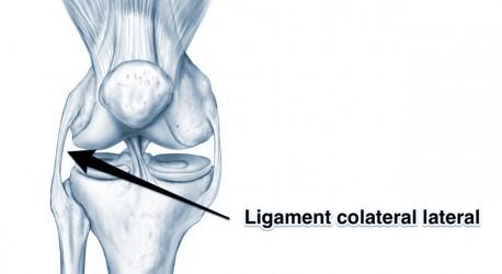 ligamentul extern al genunchiului doare