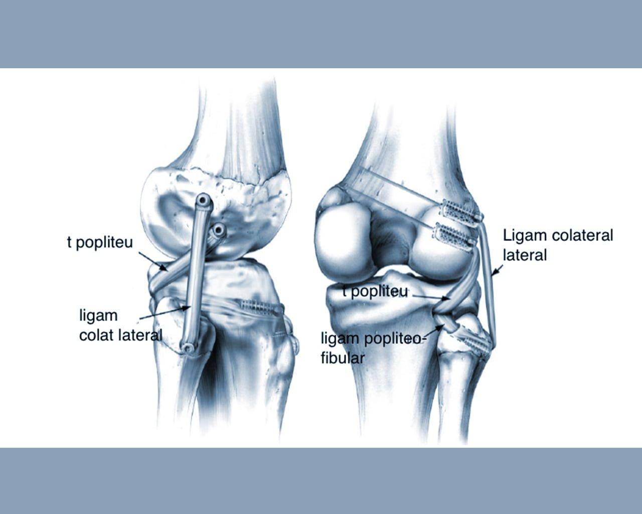 ligamentita ligamentelor laterale ale tratamentului articulației genunchiului