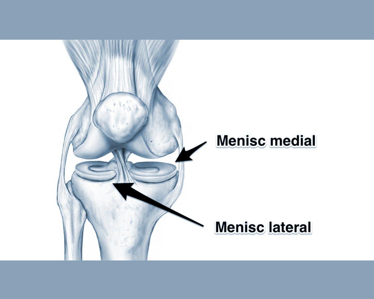 leziuni ușoare ale meniscului genunchiului