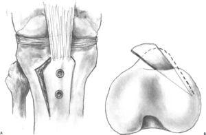 imagine schematica a osteotomiei de schimbare a pozitiei (medializare) tuberozitatii tibiale