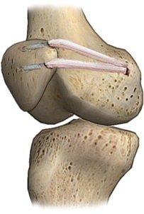 imagine schematica cu reconstructia anatomica a ligamentului patelo-femural medial (LPFM)