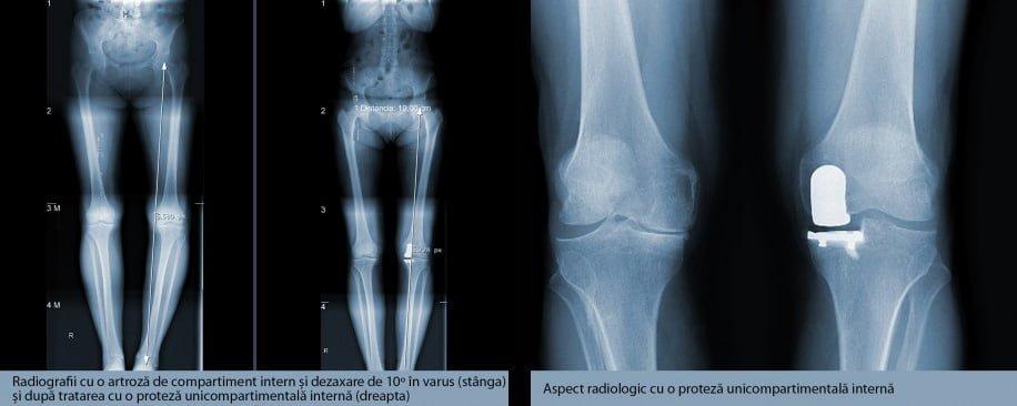 refacerea tendonului rotulian dureri articulare reumatice ale picioarelor